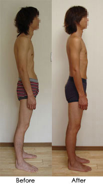 Rolfing - Before and After